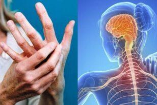 Πολλαπλή Σκλήρυνση: Τα 4 συμπτώματα που προηγούνται της διάγνωσης